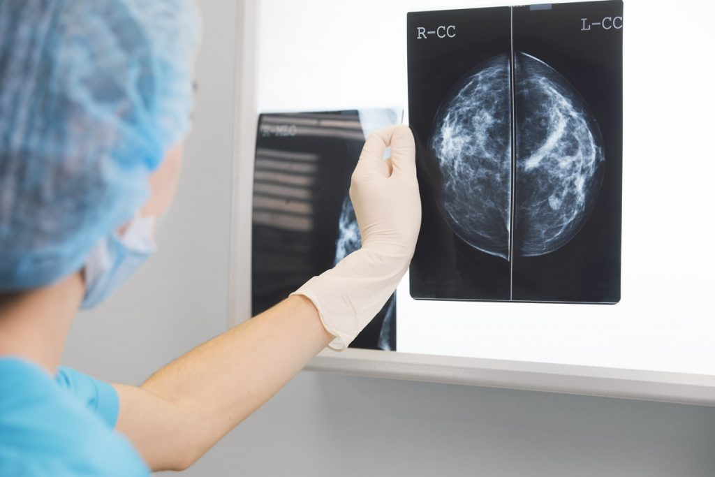A doctor holding on to a mammogram scan