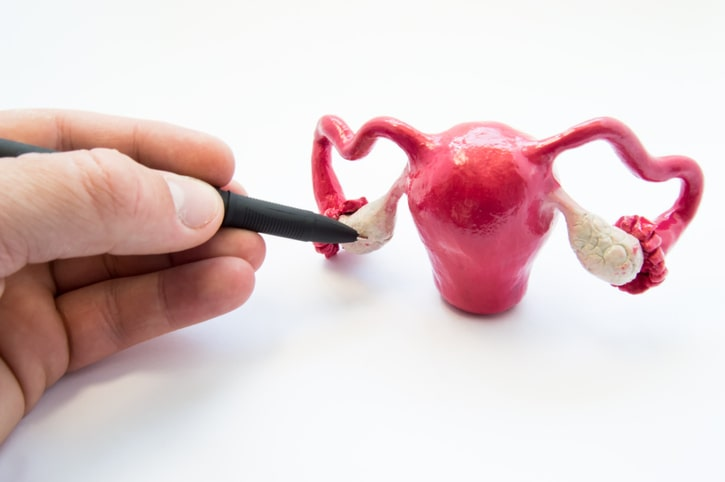 Picture of a female sex organ